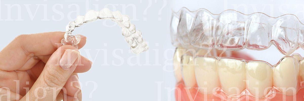 Tracy Does Invisalign® Really Work?